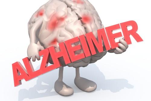 Alzheimer : Un nouvel outil de diagnostic ?