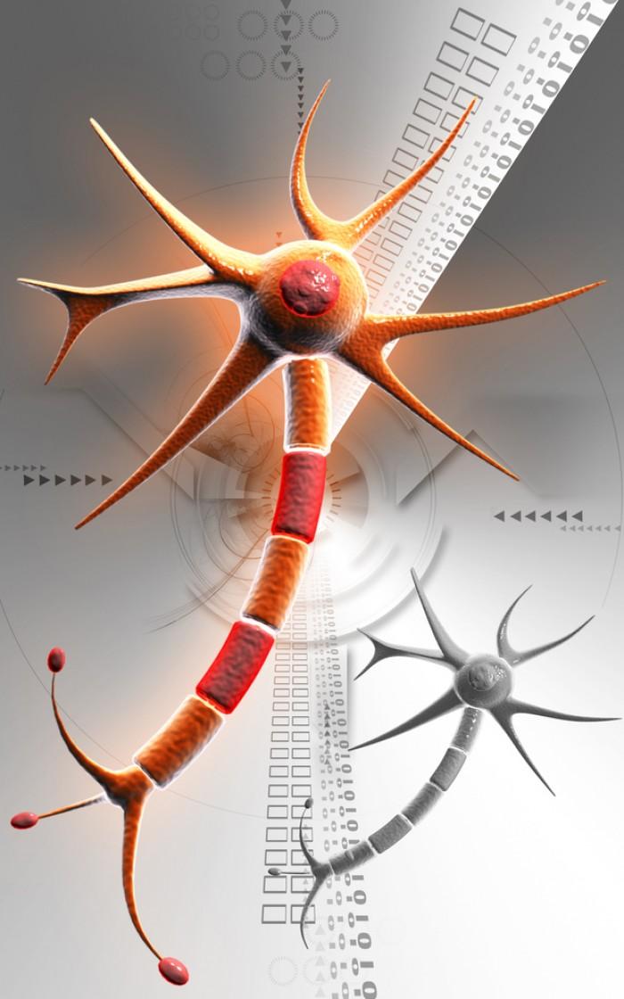 Alzheimer : Les scientifiques suédois ont travaillé sur un diagnostic précoce